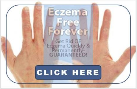 Best natural remedies for severe eczema and fast home treatment cure add prime products hub